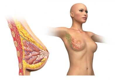 breast-infection-3